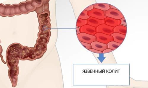 Спазмы кишечника: причины, симптомы и лечение (диета, препараты, народное)