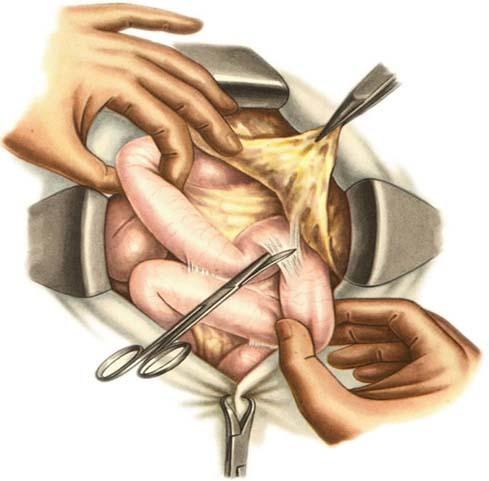 Спаечная болезнь кишечника: симптомы и лечение (диета, медикаменты, хирургия)