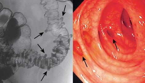 Дивертикулит кишечника: симптомы и методы лечения у взрослых