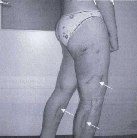 Мезентериальный панникулит: симптомы и лечение (медикаменты, хирургия)