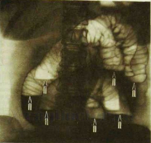 Чаши Клойбера на рентгенограмме: как проявляются и на что указывают?