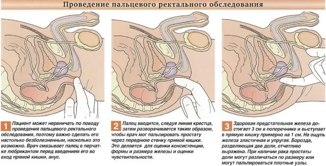 Каловые камни (копролиты) в кишечнике: симптомы и методы лечения
