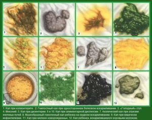 Анализ кала на копрологию: что показывает и как его сдавать?