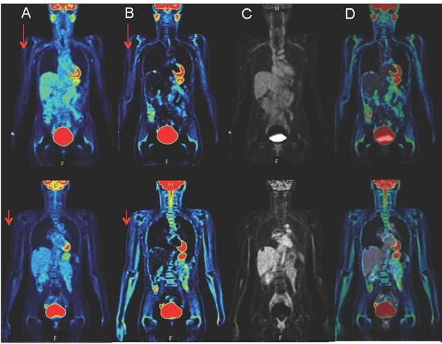 Методы обследования толстого кишечника: виды, их преимущества и недостатки