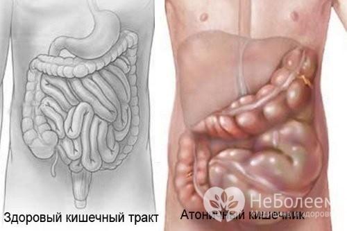 Атония кишечника: симптомы и лечение патологии