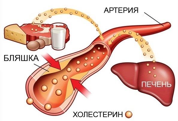 Зачем нужен холестерин? – и еще 9 вопросов о холестероле
