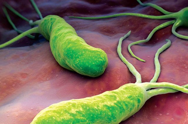 Helicobacter pylori: что это, как обнаружить и лечить