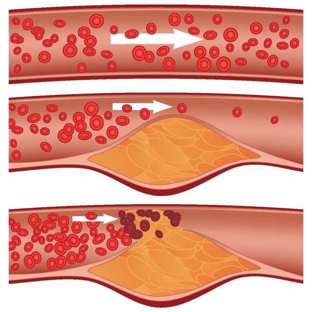 Ишемия кишечника: симптомы и лечение патологии
