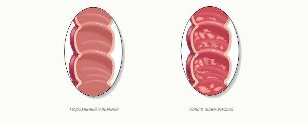 Колит кишечника у взрослых: симптомы и лечение (диета, препараты)