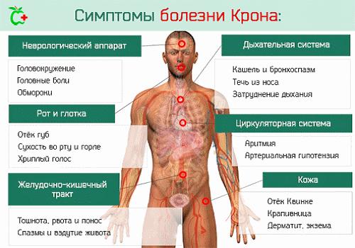 Болезнь Крона: симптомы, лечение и прогноз для жизни