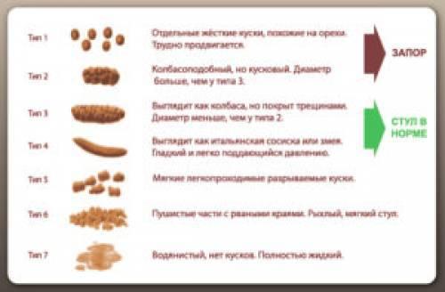 Бристольская шкала формы кала: описание и расшифровка