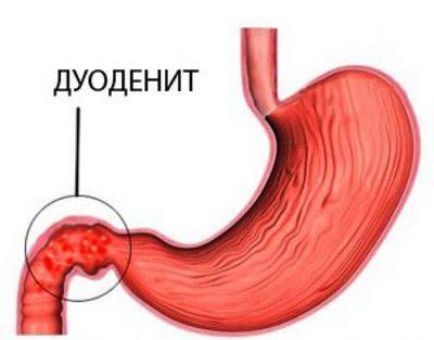 Заболевания двенадцатиперстной кишки: симптомы и лечение патологий