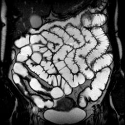 МРТ кишечника: суть процедуры, подготовка и проведение