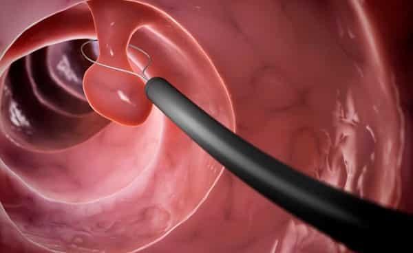Список слабительных для быстрого очищения кишечника перед обследованием, операцией