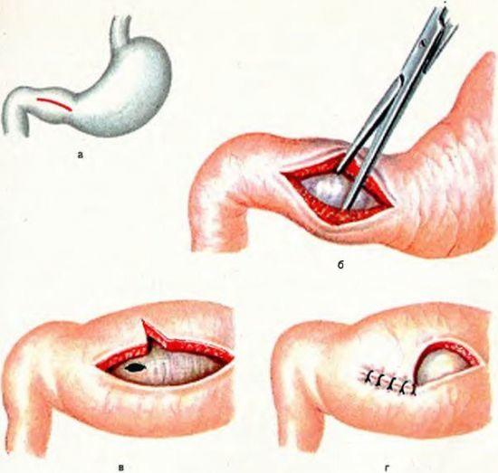 Пилоростеноз у новорожденных: симптоматика, диагностика и лечение