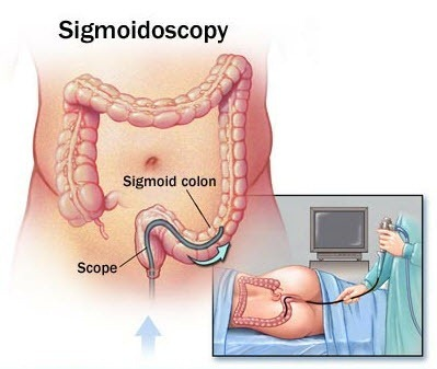 Сигмоскопия: суть процедуры, подготовка и проведение