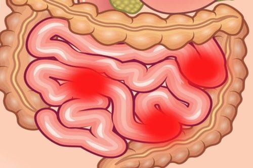 Еюнит: симптомы, причины и методы лечения (диета, препараты)