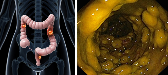 Псевдомембранозный колит: симптомы и лечение патологии