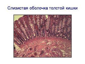 Примеси в кале: их виды и причины появления в фекалиях