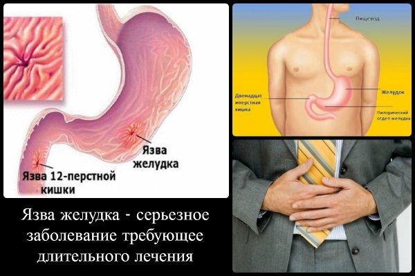 Эрозия двенадцатиперстной кишки: симптомы и лечение (диета, препараты, народное)