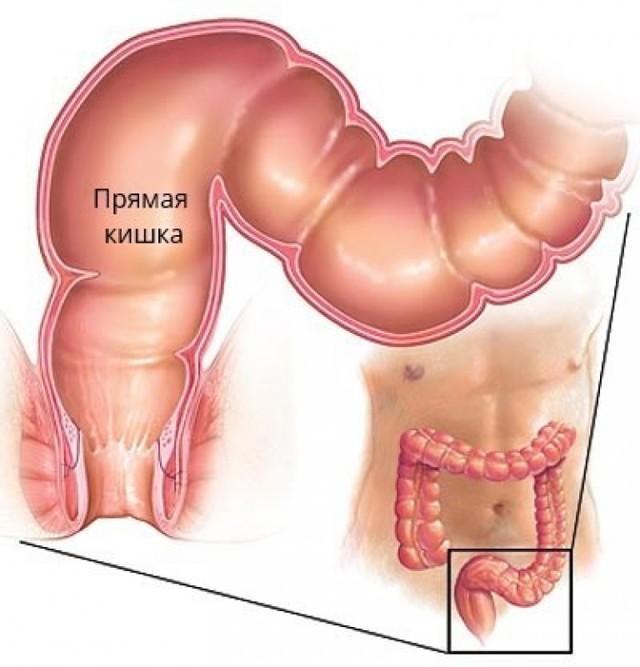 Прямая кишка: расположение, строение и функции органа