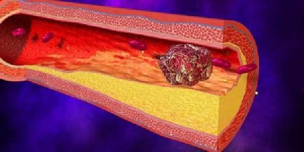 Тромбоз кишечника: причины возникновения и методы лечения
