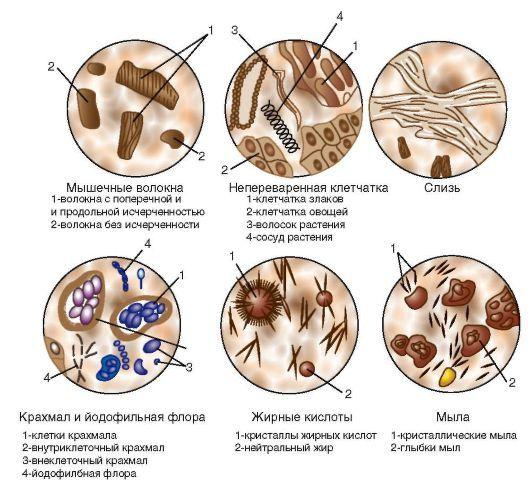 Полифекалия: причины, симптомы и лечение патологии