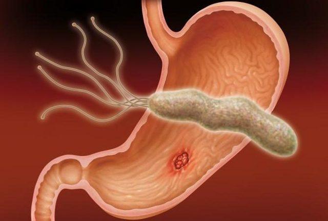 Методы диагностики Helicobacter pylori