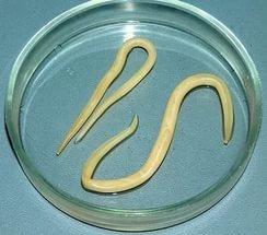 Глисты и паразиты в кишечнике у человека: симптомы, виды и методы лечения и очищения