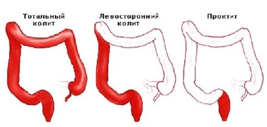 Проктит кишечника: симптомы и методы лечения у взрослых