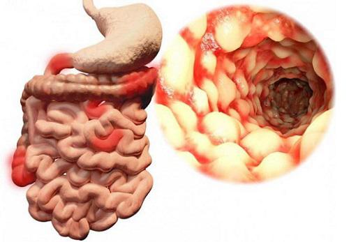 Илеит: виды, симптомы и методы лечения (диета, препараты)