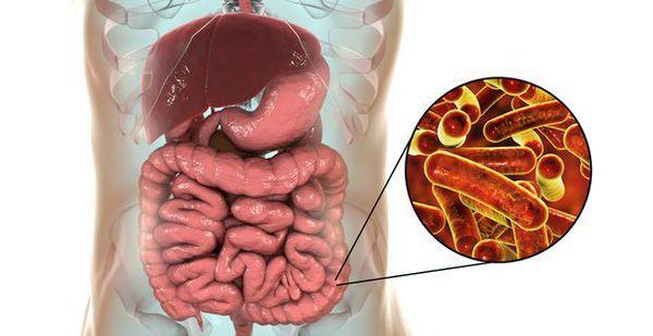 Дизентерия: симптомы разных форм болезни, лечение и прогноз