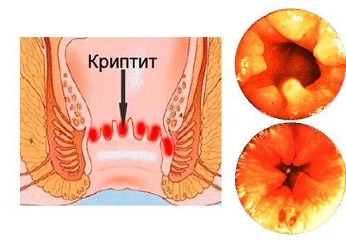 Криптит: симптомы и лечение (питание, медикаменты, хирургия)