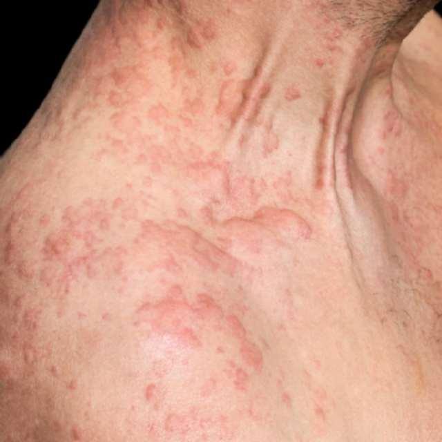 Пищевая аллергия у взрослых: симптомы и методы лечения