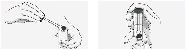 Анализ кала на дизгруппу: подготовка и проведение исследования