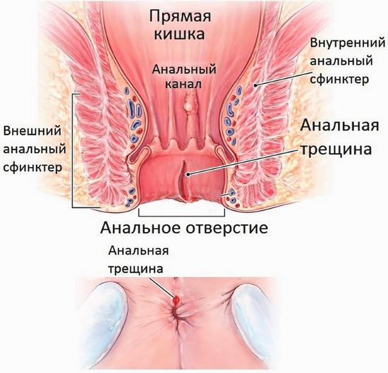 Тенезмы кишечника: причины и лечение патологии