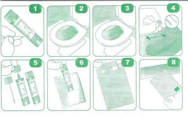 Посев кала на дисбактериоз: подготовка, проведение и расшифровка
