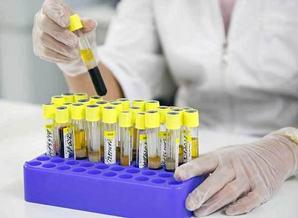 Анализ крови на хеликобактер пилори: расшифровка показателей